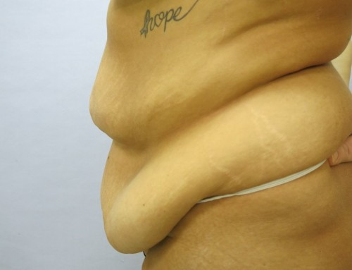 Abdominoplasty Before 1