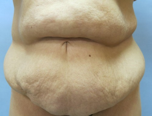 Abdominoplasty Before 2
