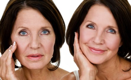 juvederm-voluma-photo