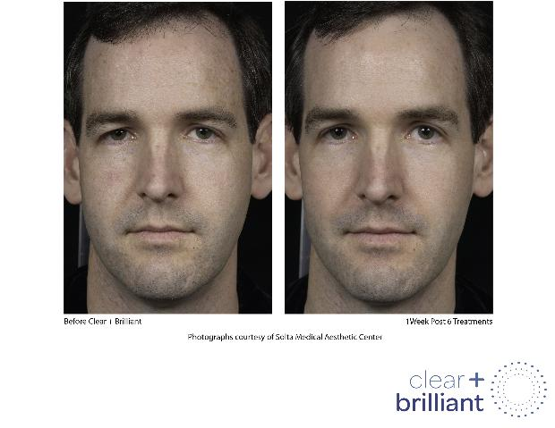clear brilliant facial rejuvenation
