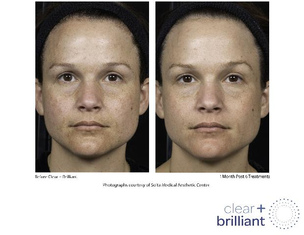 clear brilliant laser facial treatment