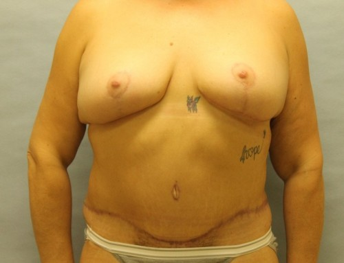 Abdominoplasty After 2
