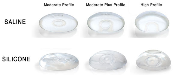 Silicone Breast Implants Vs Saline