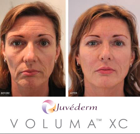 juvederm-voluma-before-and-after-pictures
