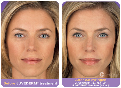 Juvederm in Raleigh