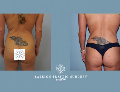 Looking to enhance your butt while using unwanted fat from other areas of your body?  Brazillian butt lifts are perfect to create the sculpted body and figure you want.  Call Tina today to book your appointment with us! 919-872-2616 . https://raleighplasticsurgery.com/