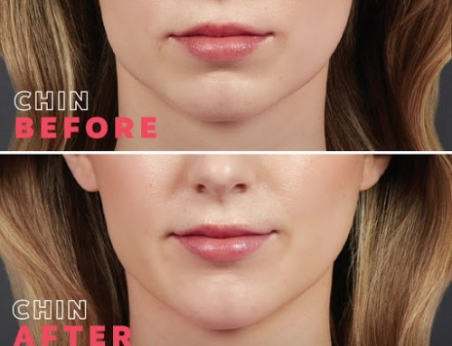 Want to reduce the signs of aging and make your skin look vibrant and healthy? Juvederm injections are available from Raleigh Plastic Surgery Center and for a limited time, Alle is offering all members double points for any Juvederm injection paired with a Botox injection!  Book your appointment with Jen, RN to get yours today! 919-872-2616. https://raleighplasticsurgery.com/