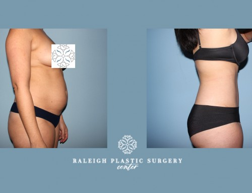 Looking to have a flatter stomach and no stretch marks?  Our surgeons will help you prepare for this summers beach season with our Tummy Tuck procedures. Call us today to book your appointment with us! 919-872-2616 . https://raleighplasticsurgery.com/