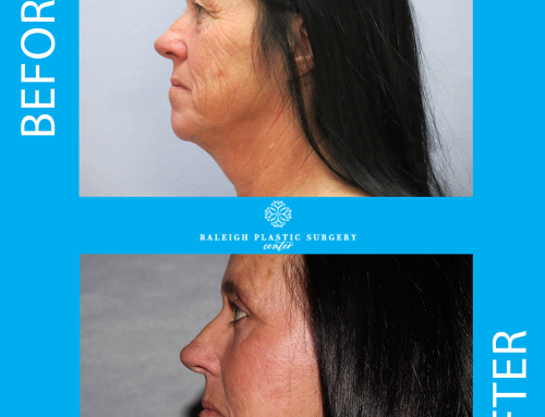 With Raleigh Plastic Surgery Centers neck lift procedure you can say goodbye jowls and sagging skin. Our surgeons are able to transform and redefine this patient's neck and jawline, giving her a more youthful shaped face and tighter neck. This procedure removes loose skin and tightens the muscles.  What are you waiting for?  Call us today at 919-872-2616. https://raleighplasticsurgery.com/