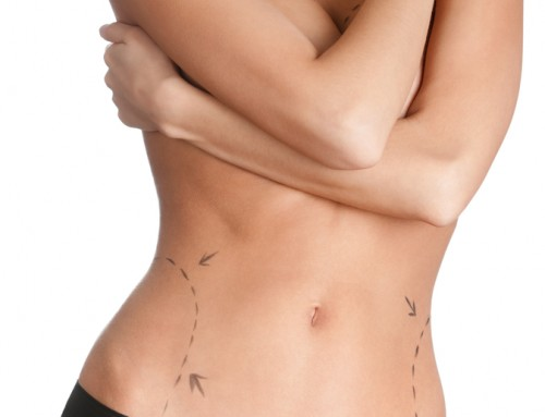 Raleigh Plastic Surgery Center is a leader in body contouring operations and can assist you in eliminating stubborn fat deposits. With spring and summer pool parties, beach trips, and more on the horizon, now is the ideal time to achieve the physique you desire! Make a reservation with us immediately to ensure that you are prepared for this summer! +1 919-872-2616 https://raleighplasticsurgery.com/