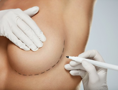 Breast Augmentation Basics : Getting Your Life & House Ready for Breast Augmentation Surgery