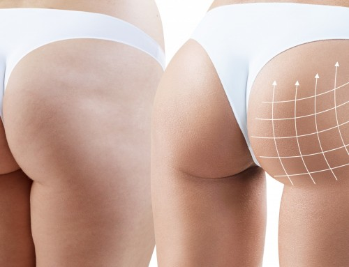 Do you want to use your fat deposits from other areas of your body to enhance the appearance of your buttocks? The brazilian butt lift provides excellent shaping and sculpting capabilities for the physique you want. Call Tina now to schedule an appointment! +1 919-872-2616 https://raleighplasticsurgery.com/