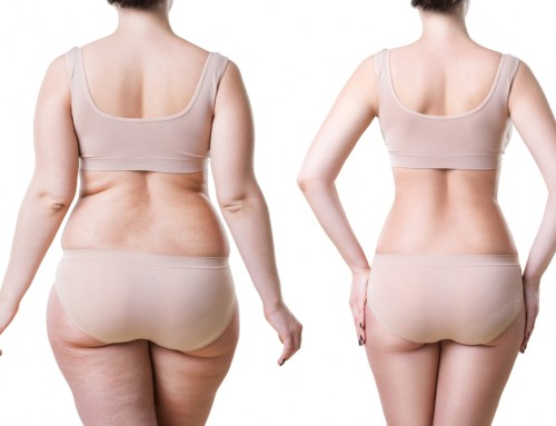 LIPOSUCTION IS AWESOME, BUT HOW FANTASTIC IS IT?