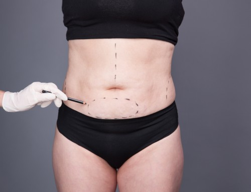 A tummy tuck tightens the abdominal wall and flattens the stomach. The abdomen's loose, extra fat and skin are removed by the surgeon. After pregnancy, some women choose for a tummy tuck. The procedure can also be used to remove extra skin following a significant weight loss. This procedure is also known as abdominoplasty. Please ask Raleigh Plastic Surgery for more details. raleighplasticsurgery.com +1 919-872-2616