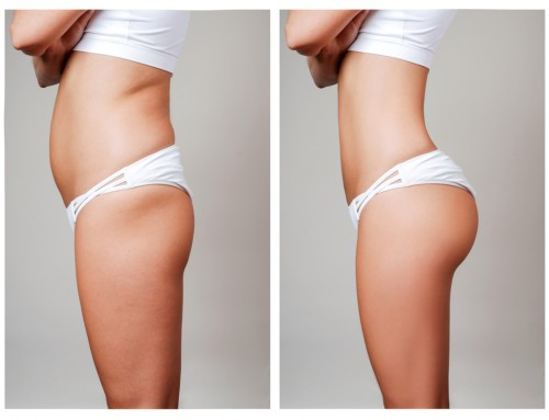 Liposuction is the most common procedure for both females & males. For females, it is the second most popular. Liposuction operations were performed on 265,200 men and women in 2019. This method suctions fat from beneath the skin, however it is not a weight-loss surgery. Liposuction reshapes regions of the body that don't react well to diet or exercise. The most common body areas treated are the hips, abdomen, thighs, and flanks. Liposuction can be used to reduce the size of the breasts in both men and women. Liposuction is considered one of the most safe cosmetic treatments, according to experts. Please contact Raleigh Plastic Surgery for more information. raleighplasticsurgery.com +1 919-872-2616